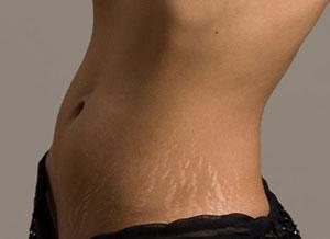 как убрать жировые складки на животе?