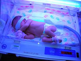 Послеродовая желтуха у новорожденных: когда стоит бить тревогу, а когда достаточно просто наблюдать за малышом