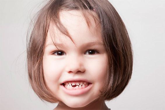 когда выпадают молочные зубы