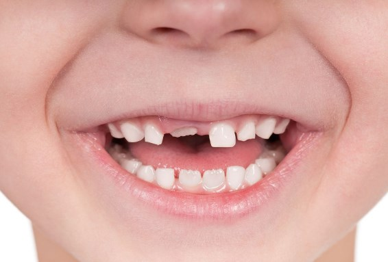 сроки прорезывания постоянных зубов