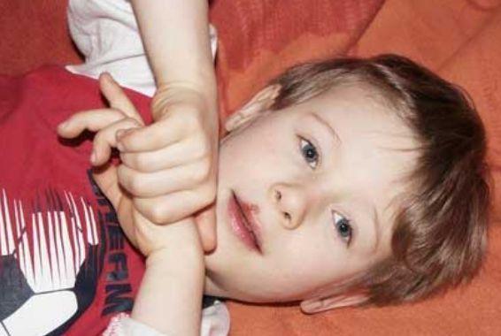 лечение герпеса на губах у детей